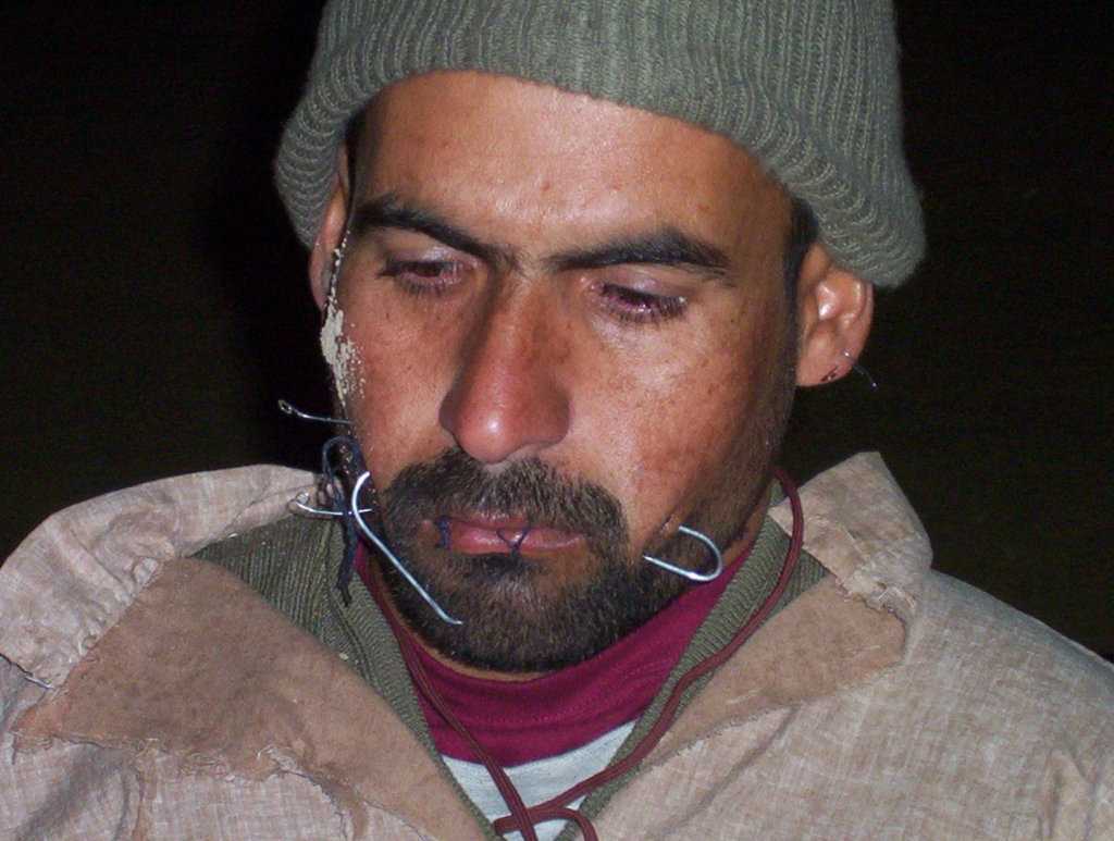 us-detainee-wired-2004-08-06 Jaw Wiring T on jaw splint, jaw clutch, jaw wired shut, jaw suspension, jaw diagram, jaw socket, jaw parts, jaw surgery procedures,